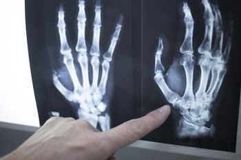 Radiology is an integral part of Arthritis & Rheumatology Center